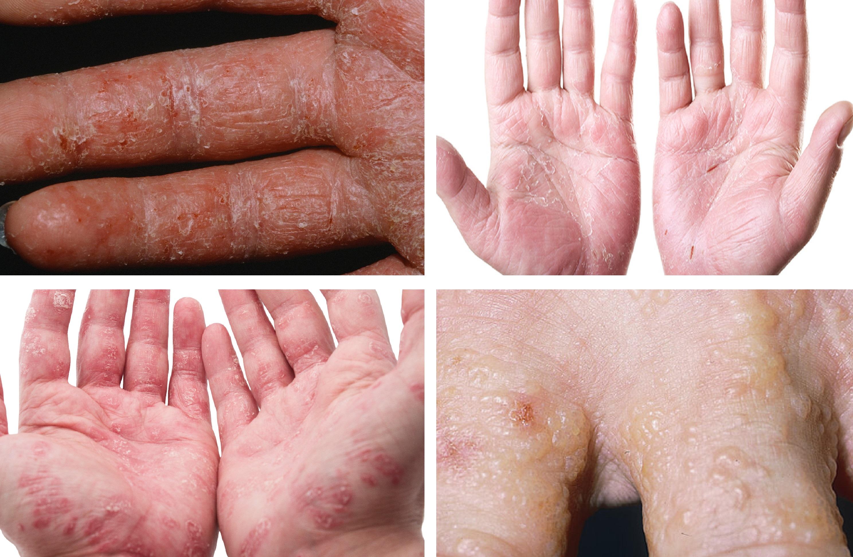 Ellerde egzama nasıl tedavi edilir