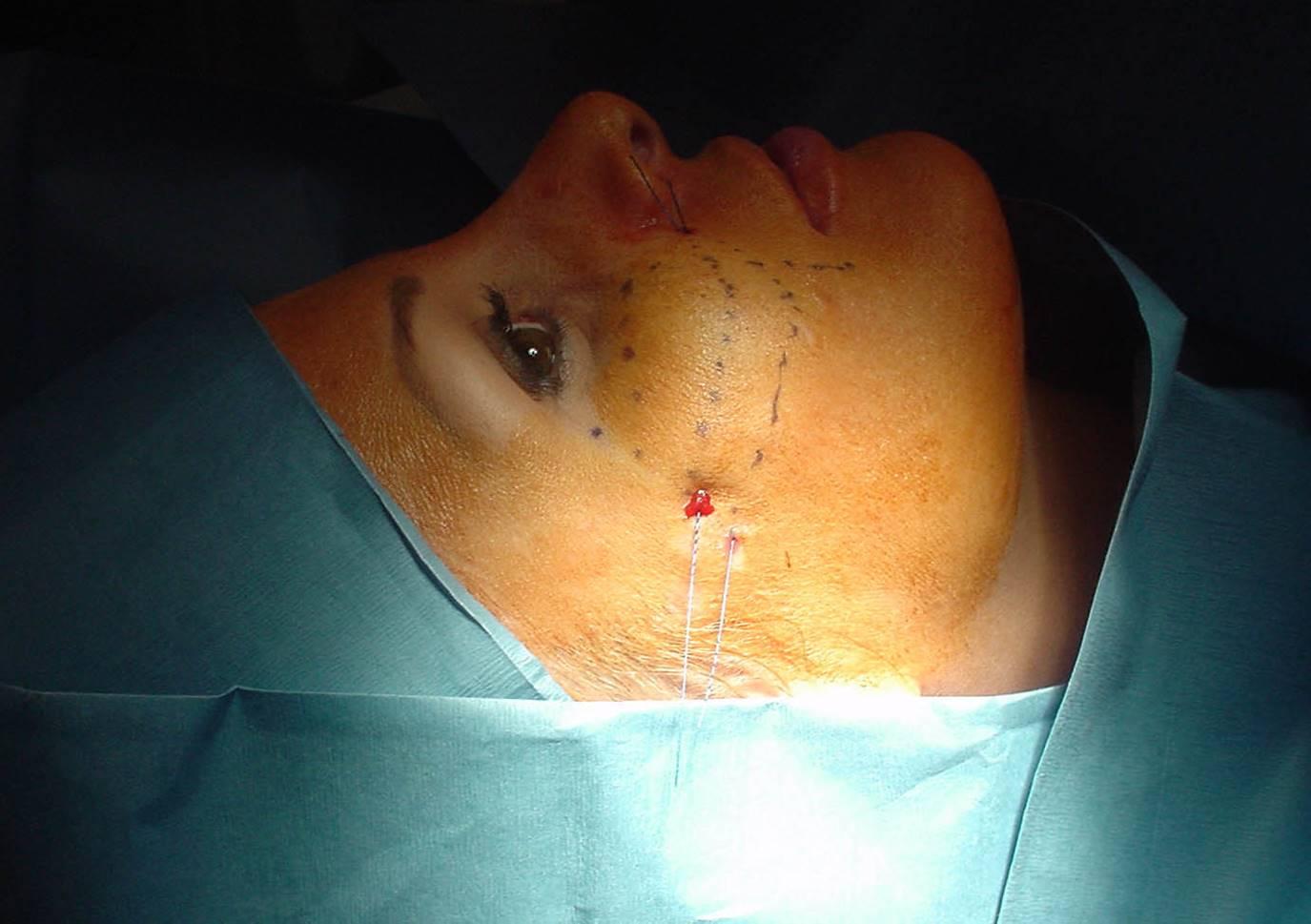 Erimeyen Ameliyat İpleri