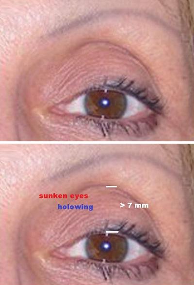 sunken eyes meaning - 400×589