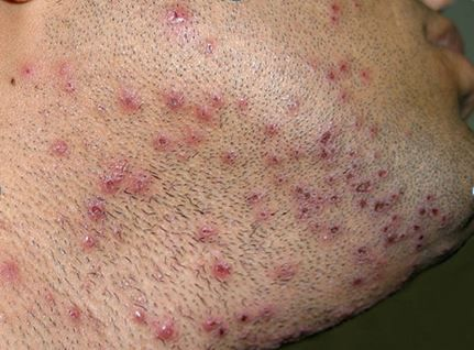 Herpes simplex 2 randevú